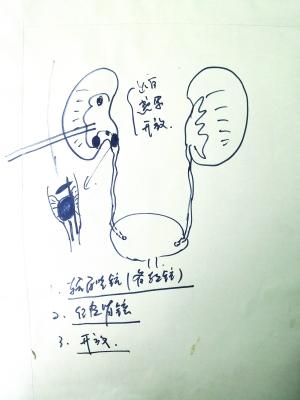 手绘图诠释大手术 暖心医生化身灵魂画手