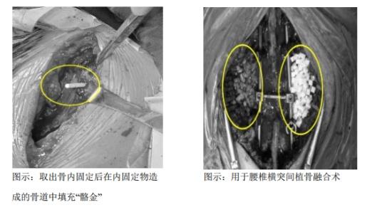奥精医疗今日申购:矿化胶原人工骨修复材料技术领先但市场渗透不足,原料供给不稳定