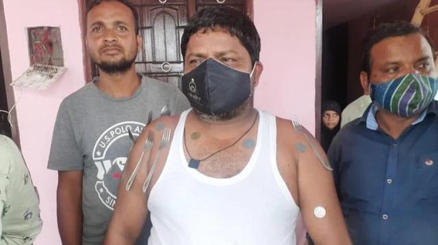 """印度有人宣称接种新冠疫苗后产生""""磁力"""",刀叉硬币可粘身上"""